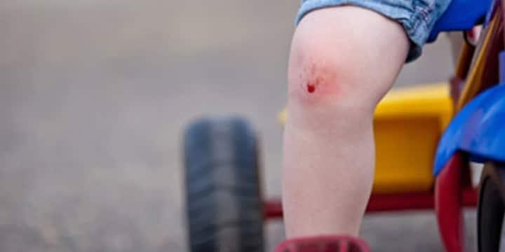 Conférenciers Québec, Formation, Motivation et Team Building - Formax - Besoin de cicatrices
